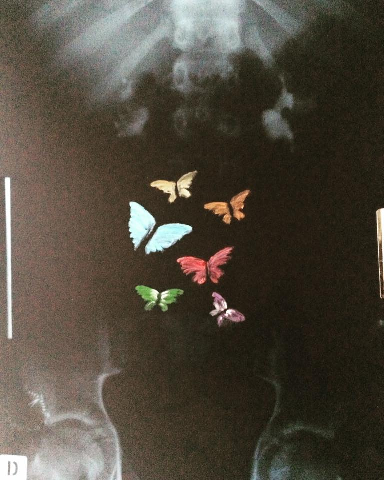 Butterflies Diagnosis Oil On Xray2018